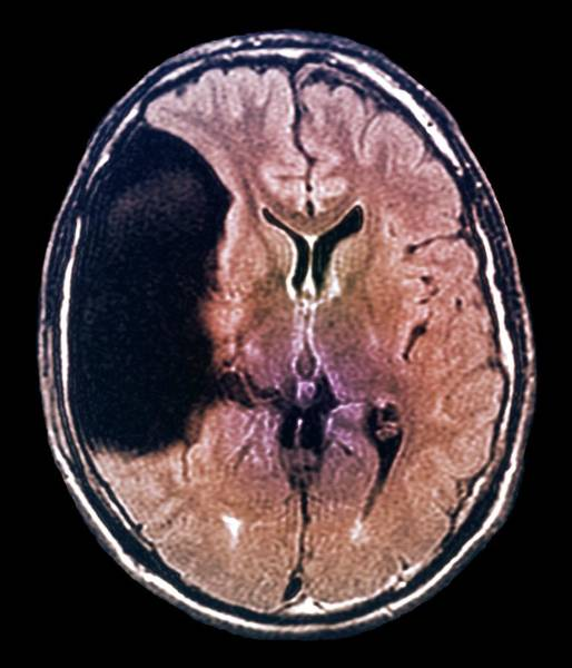 Resonance Wall Art - Photograph - Arachnoid Cyst In The Brain by Zephyr/science Photo Library