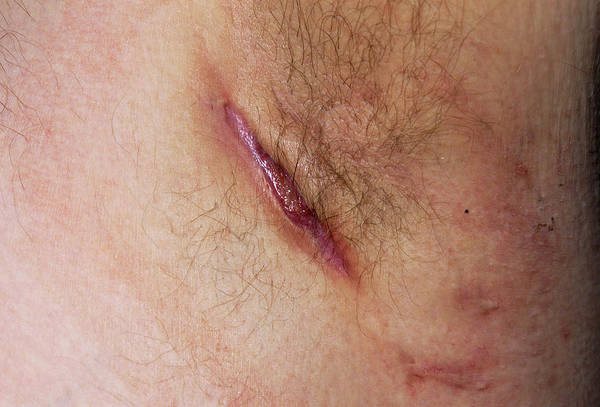 Wall Art - Photograph - Armpit Abscess by Dr P. Marazzi/science Photo Library