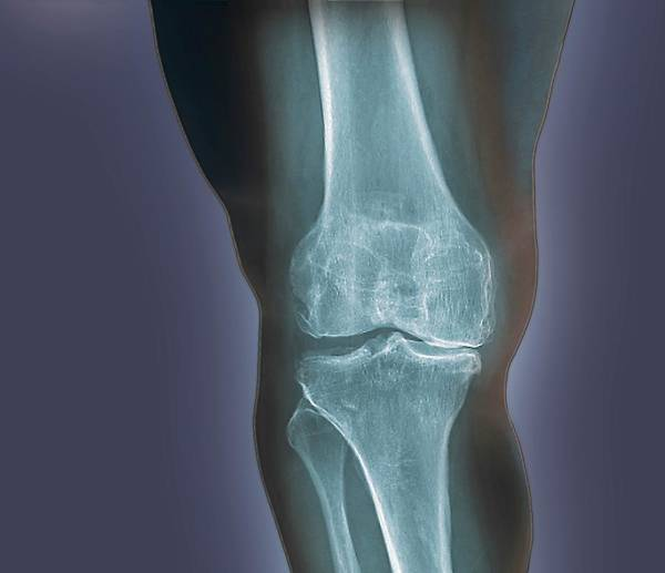Radiological Photograph - Arthritis Of The Knee by Zephyr/science Photo Library