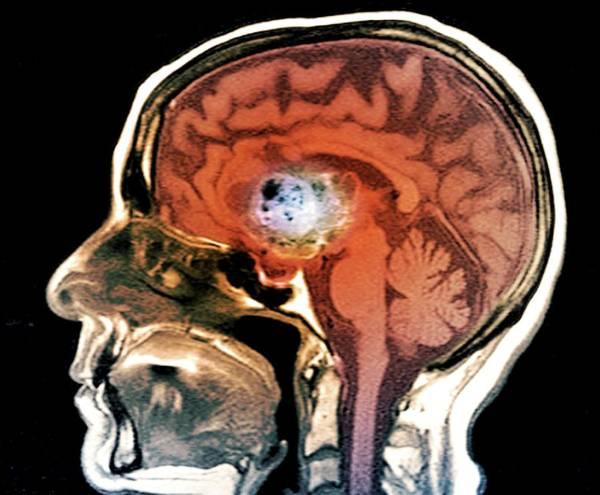 Brain Cancer Wall Art - Photograph - Astrocytoma Brain Cancer by Zephyr/science Photo Library