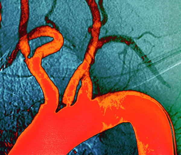 Atherosclerosis Wall Art - Photograph - Atheroma Plaque by Zephyr/science Photo Library