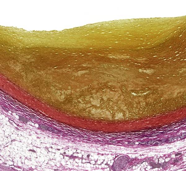 Artery Wall Art - Photograph - Atherosclerosis by Steve Gschmeissner