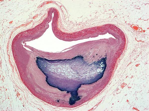 Wall Art - Photograph - Atherosclerosis by Steve Gschmeissner/science Photo Library