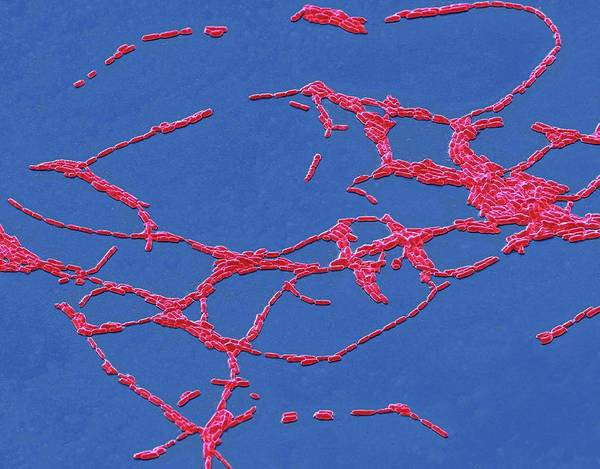 Anaerobe Wall Art - Photograph - Bacillus Cereus by Steve Gschmeissner/science Photo Library