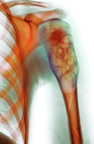 Upper Body Photograph - Benign Bone Cyst by Mike Devlin