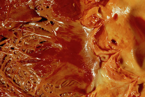 Bleeding Photograph - Bleeding From The Heart by Cnri/science Photo Library