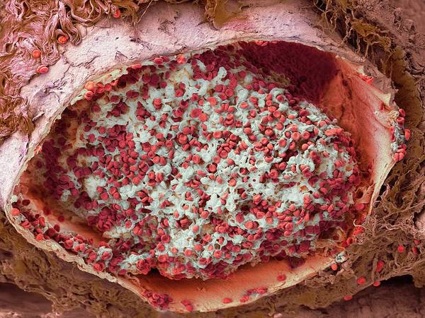 Fibrin Wall Art - Photograph - Blood Clot In The Lung by Microscopy Core Facility, Vib Gent