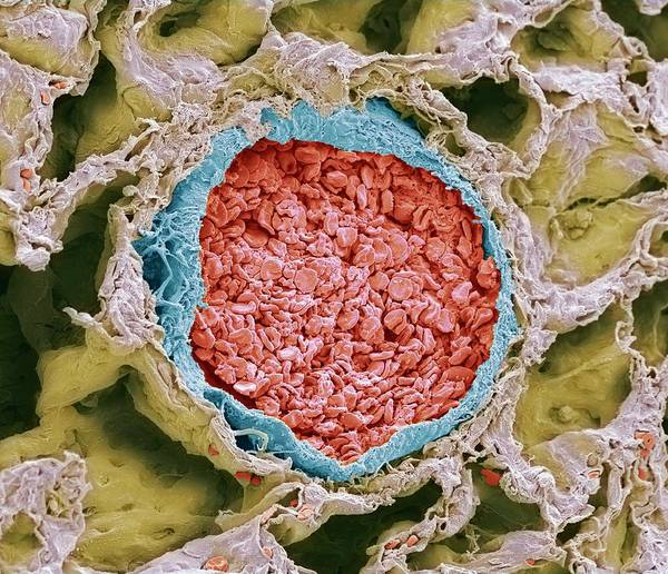 Wall Art - Photograph - Blood-filled Pulmonary Arteriole by Steve Gschmeissner/science Photo Library
