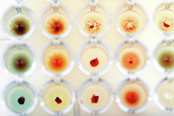 Hematology Wall Art - Photograph - Blood Group Test by Daniela Beckmann / Science Photo Library