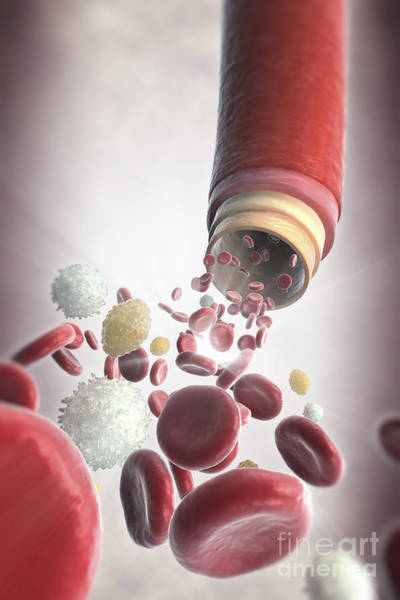 Photograph - Blood Vessel With Cells by Science Picture Co