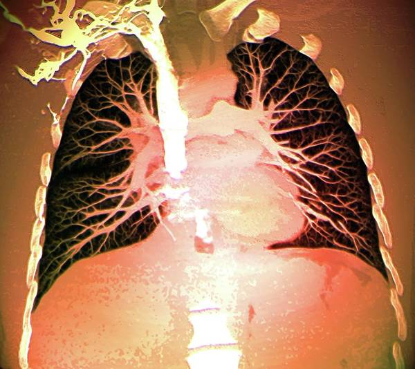 Superior Vena Cava Photograph - Blood Vessels Of Healthy Lungs by Zephyr/science Photo Library