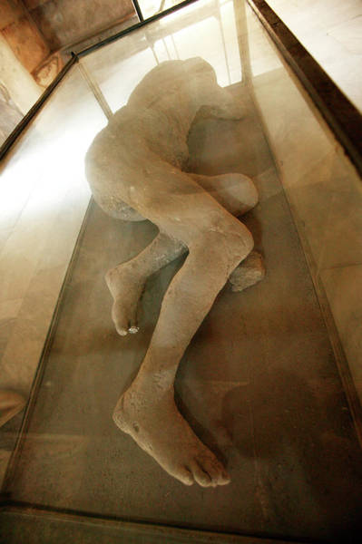 Wall Art - Photograph - Body Cast by Science Photo Library