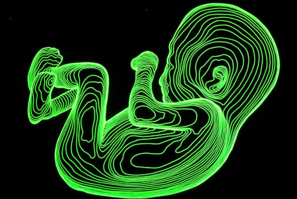 Contour Photograph - Body Contour Map Of 14-week-old Foetus by Dr Robin Williams/science Photo Library