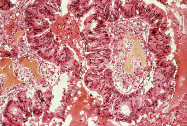 Wall Art - Photograph - Bone Tumour by Cnri/science Photo Library