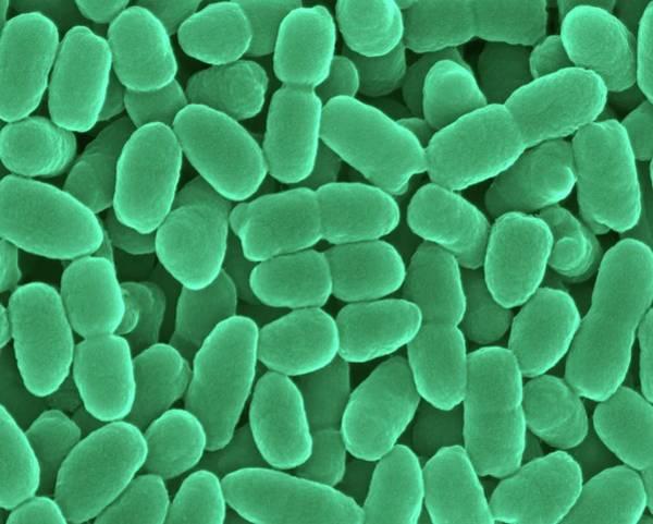 Tif Wall Art - Photograph - Bordetella Holmesii -coccobacillus Prokaryote by Dennis Kunkel Microscopy/science Photo Library