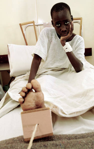 Traction Photograph - Boy In A Hospital Bed by Mauro Fermariello/science Photo Library