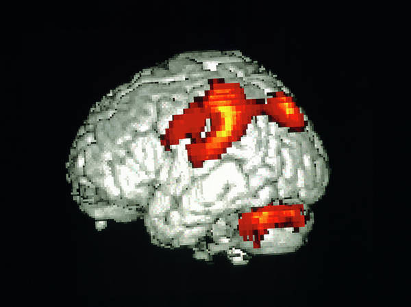 Motor Cortex Photograph - Brain Activity Reading Braille by Wellcome Dept. Of Cognitive Neurology/ Science Photo Library