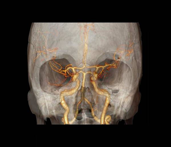 Vertebral Artery Photograph - Brain Arteries And Circle Of Willis by Zephyr/science Photo Library