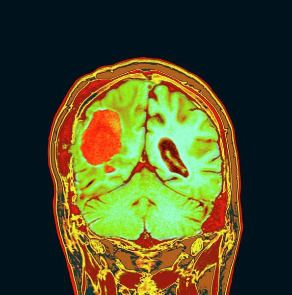 Brain Cancer Wall Art - Photograph - Brain Cancer After Surgery by Dr P. Marazzi