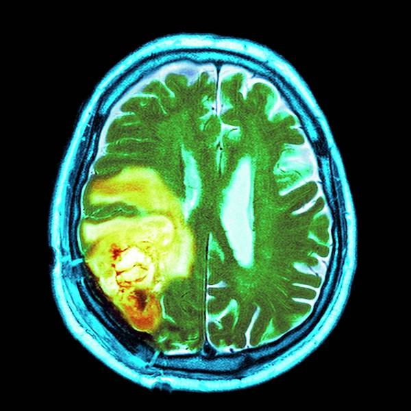 Brain Cancer Wall Art - Photograph - Brain Cancer by Dr P. Marazzi
