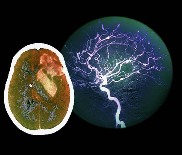 Cerebral Angiogram Photograph - Brain Haemorrhage From Aneurysm by Zephyr/science Photo Library