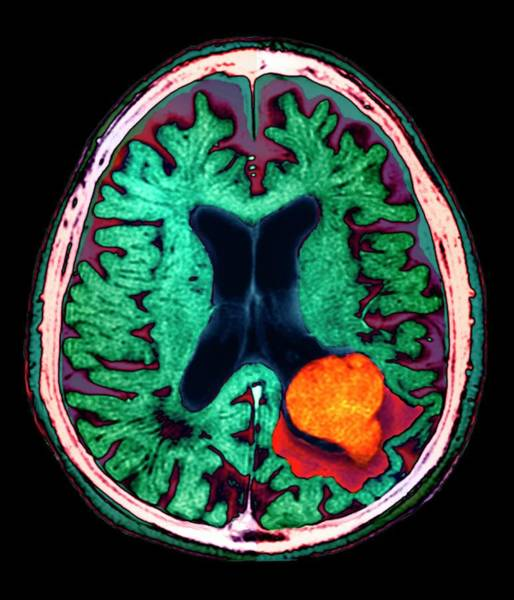 Medical Imaging Photograph - Brain Lesion by Zephyr/science Photo Library