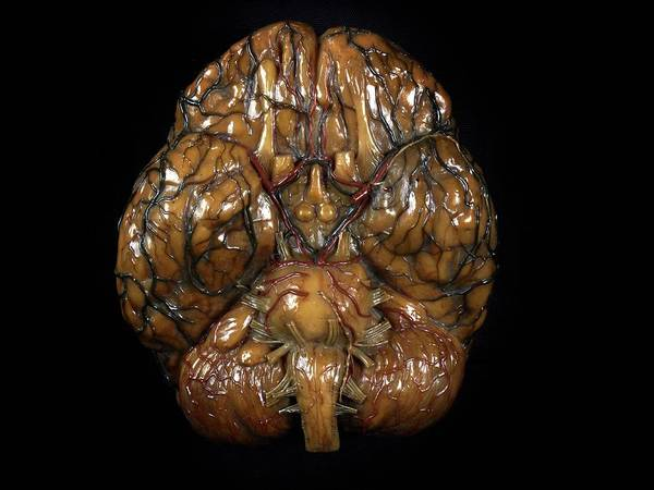 Nervous System Photograph - Brain Model by Javier Trueba/msf