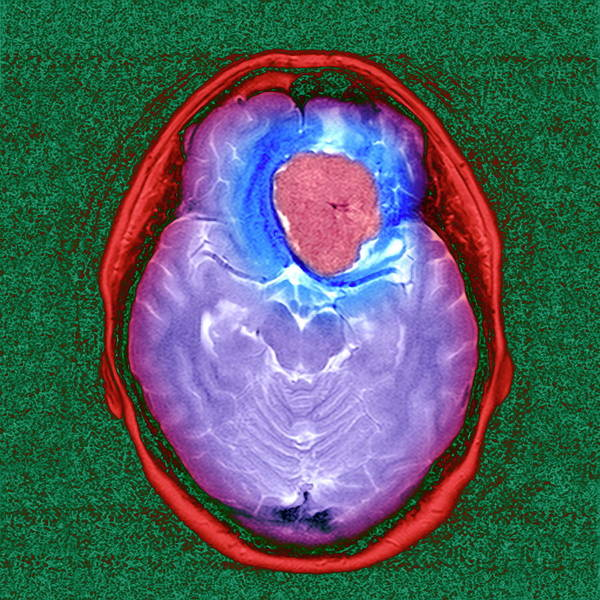 Wall Art - Photograph - Brain Tumour by Simon Fraser/newcastle Hospital Nhs Trust/science Photo Library