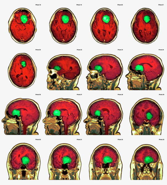 Brain Cancer Wall Art - Photograph - Brain Tumour by Simon Fraser/newcastle Hospitals Nhs Trust/science Photo Library