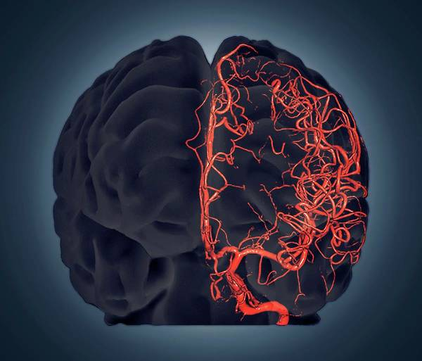 Cerebral Angiogram Photograph - Brain Vascular System by Zephyr/science Photo Library