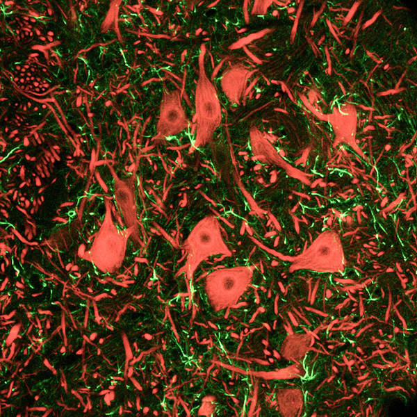 Nerve Cell Photograph - Brainstem Nerve Cells by C.j.guerin, Phd, Mrc Toxicology Unit/ Science Photo Library