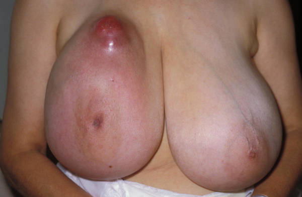 Patient Photograph - Breast Cancer by Dr M.a. Ansary/science Photo Library