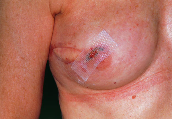Wall Art - Photograph - Breast Reconstruction Following Tumour Excision by Dr P. Marazzi/science Photo Library