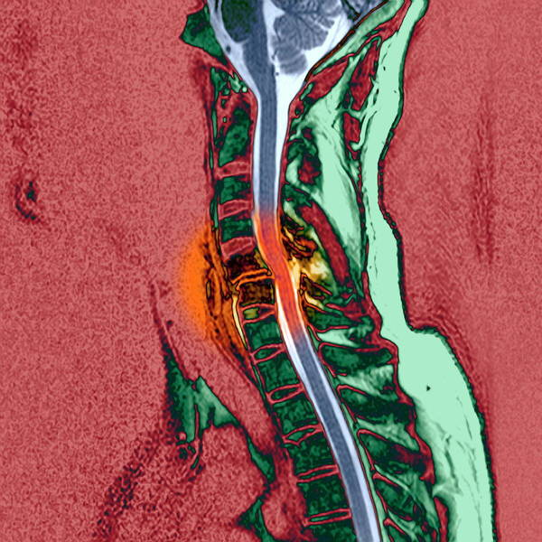 C6 Wall Art - Photograph - Broken Neck by Simon Fraser/newcastle Hospitals Nhs, Trust/science Photo Library