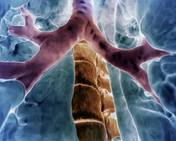 Bronchus Photograph - Bronchial Divisions by Zephyr/science Photo Library