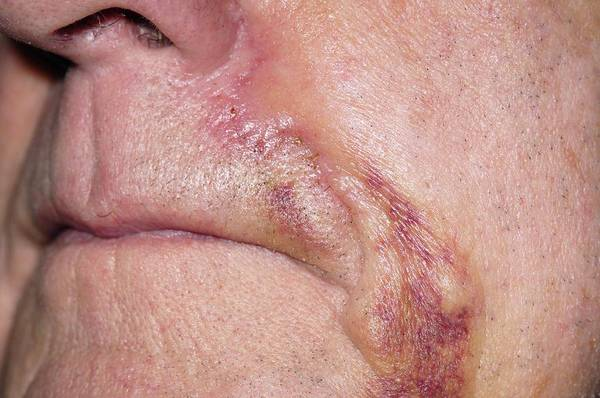 Wall Art - Photograph - Bruising Following Skin Cancer Surgery by Dr P. Marazzi/science Photo Library