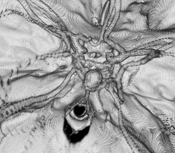 Cerebral Photograph - Cerebral Aneurysm by K H Fung/science Photo Library