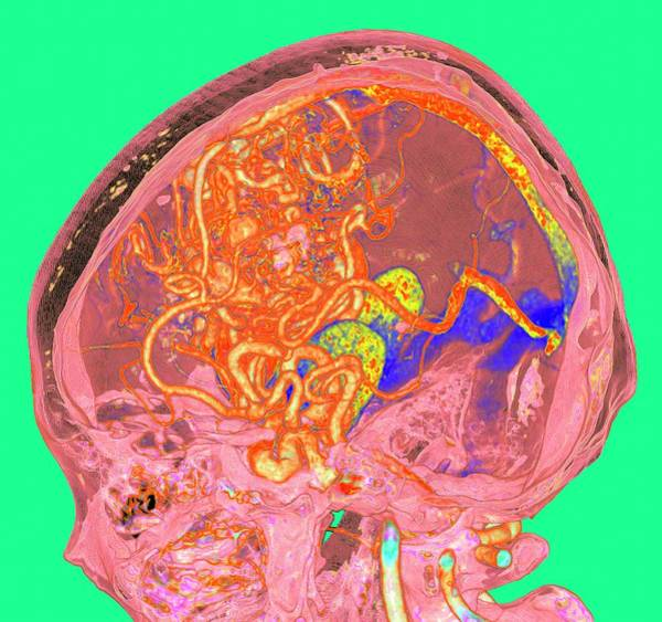 Wall Art - Photograph - Cerebral Arteriovenous Malformation by K H Fung/science Photo Library