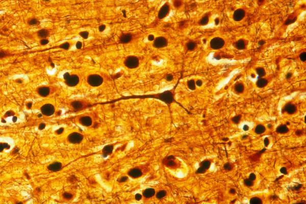 Wall Art - Photograph - Cerebral Cortex Pyramidal Cells, Lm by Michael Abbey