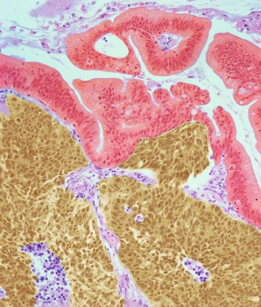 Malignant Wall Art - Photograph - Cervical Cancer by Steve Gschmeissner