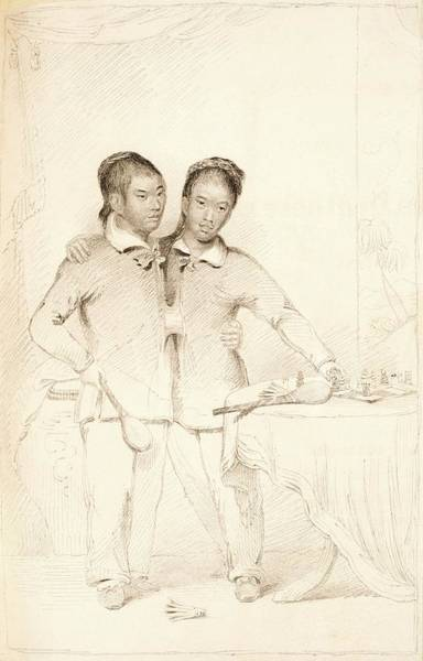 Wall Art - Photograph - Chang And Eng Conjoined Twins by Us National Library Of Medicine/science Photo Library