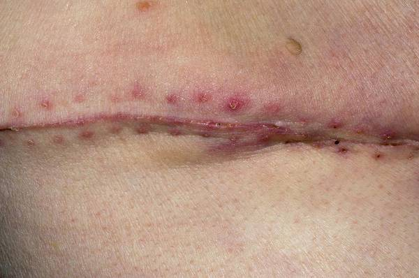 Thoracic Photograph - Chest Scar For Lung Cancer by Dr P. Marazzi/science Photo Library