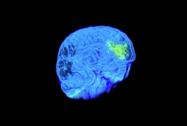 Neurobiology Photograph - Child's Brain Activity by Thierry Berrod, Mona Lisa Production/ Science Photo Library