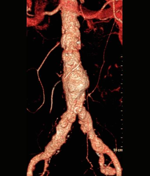 Atherosclerosis Wall Art - Photograph - Cholesterol Embolism by Zephyr/science Photo Library