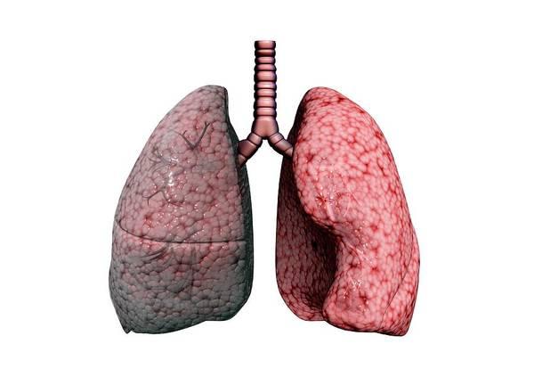 Chronic Wall Art - Photograph - Chronic Obstructive Pulmonary Disease by Gunilla Elam/science Photo Library