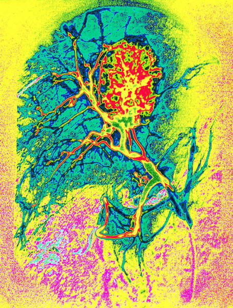 Coloured Angiogram X-ray Of A Tumour In The Liver Art Print