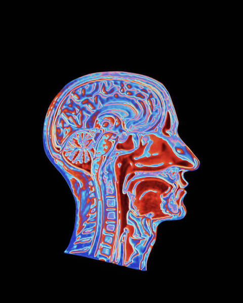 Wall Art - Photograph - Coloured Ct Scan Of A Head Showing A Healthy Brain by Pasieka