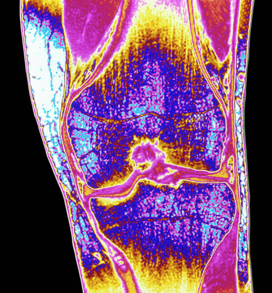 Mri Photograph - Coloured Mri Of A Section Through A Knee Joint by Simon Fraser/science Photo Library