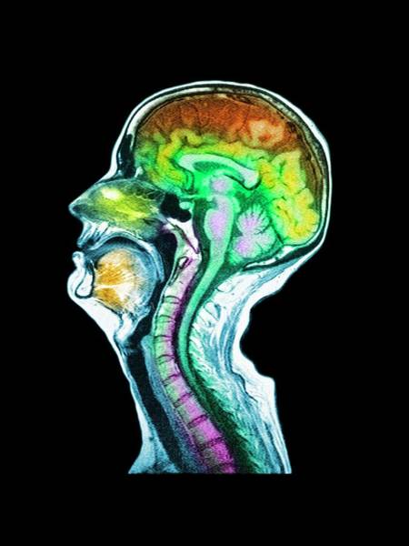 Mri Photograph - Coloured Mri Scan Of A Brain With Cerebral Atrophy by Simon Fraser/royal Victoria Infirmary, Newcastle Upon Tyne/science Photo Library