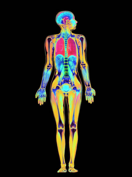Mri Photograph - Coloured Mri Scan Of A Whole Human Body (female) by Simon Fraser/science Photo Library